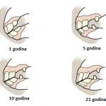 Zubi konja starost