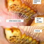 korekcija zuba